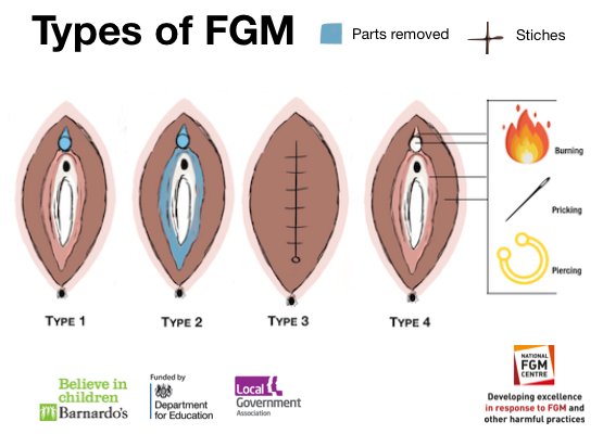 Diagrams showing 4 types of fgm